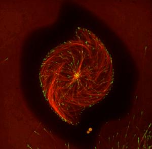 Cytoskeleton Storm Video Image